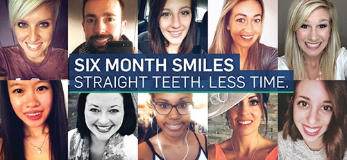 An image of people smiling after using Six Month Smiles Orthodontics